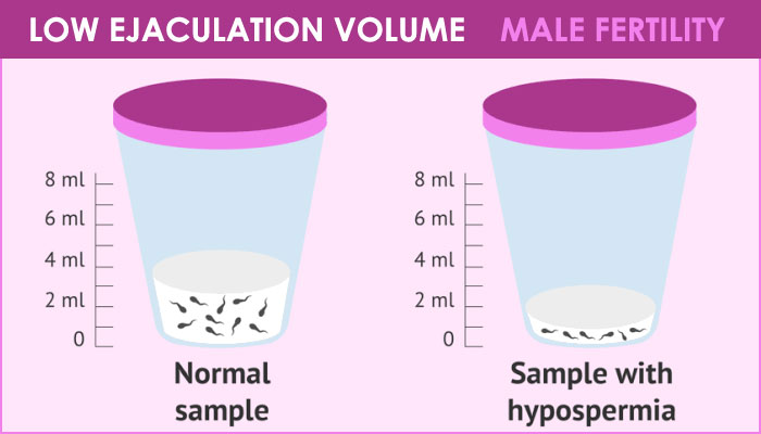 male fertility and causes of low ejaculation volume